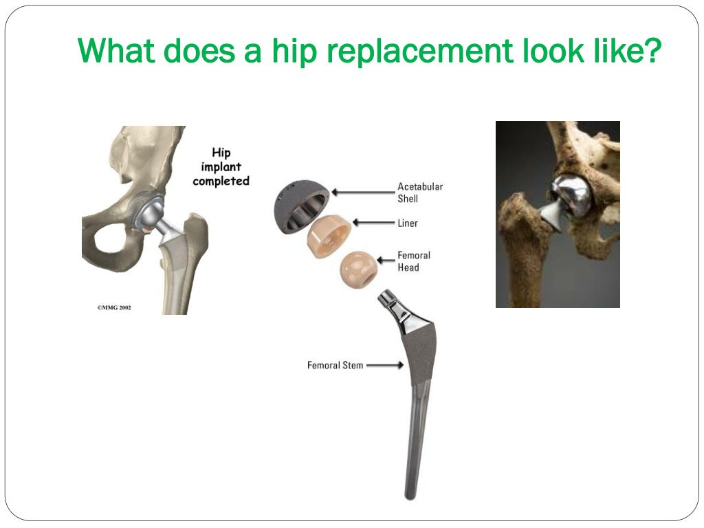 What does a hip replacement look like?