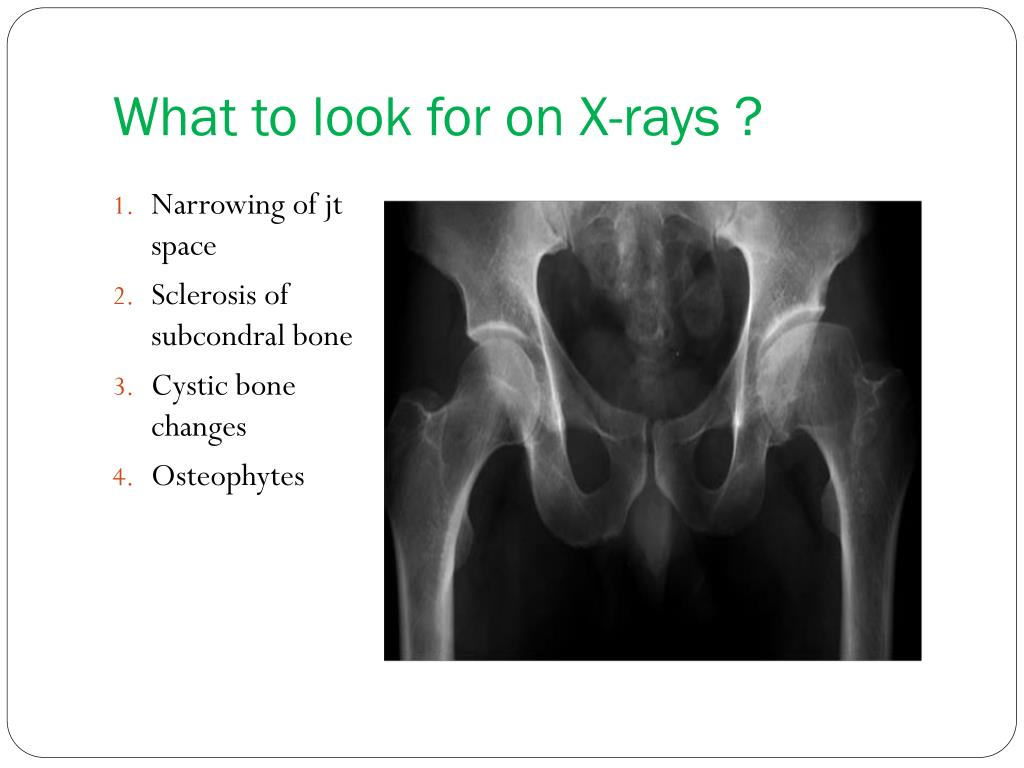 What to look for on X-rays ?