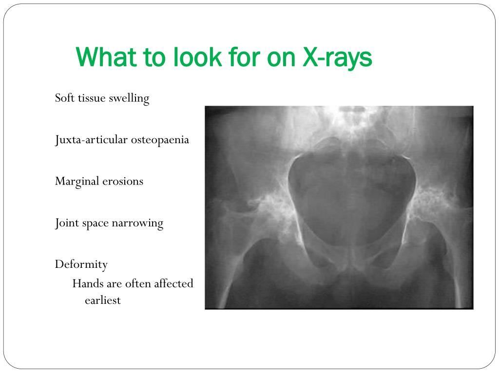 What to look for on X-rays