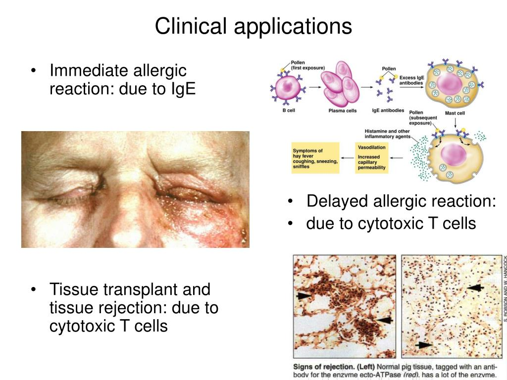 Immediate allergic reaction: due to IgE