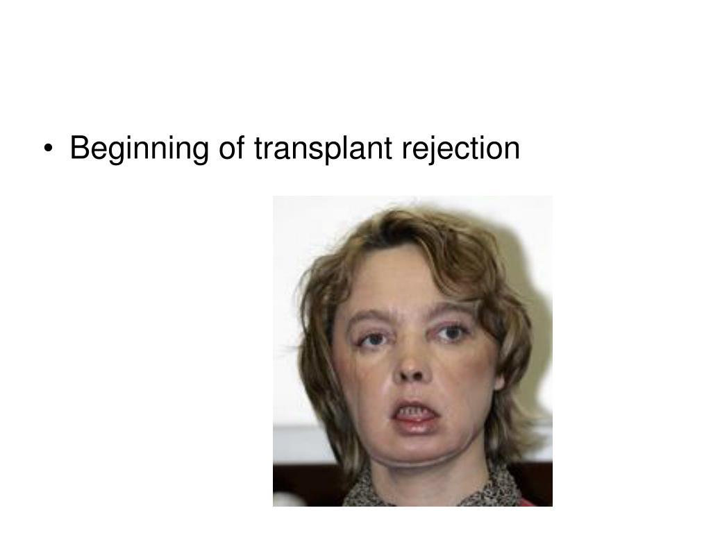 Beginning of transplant rejection
