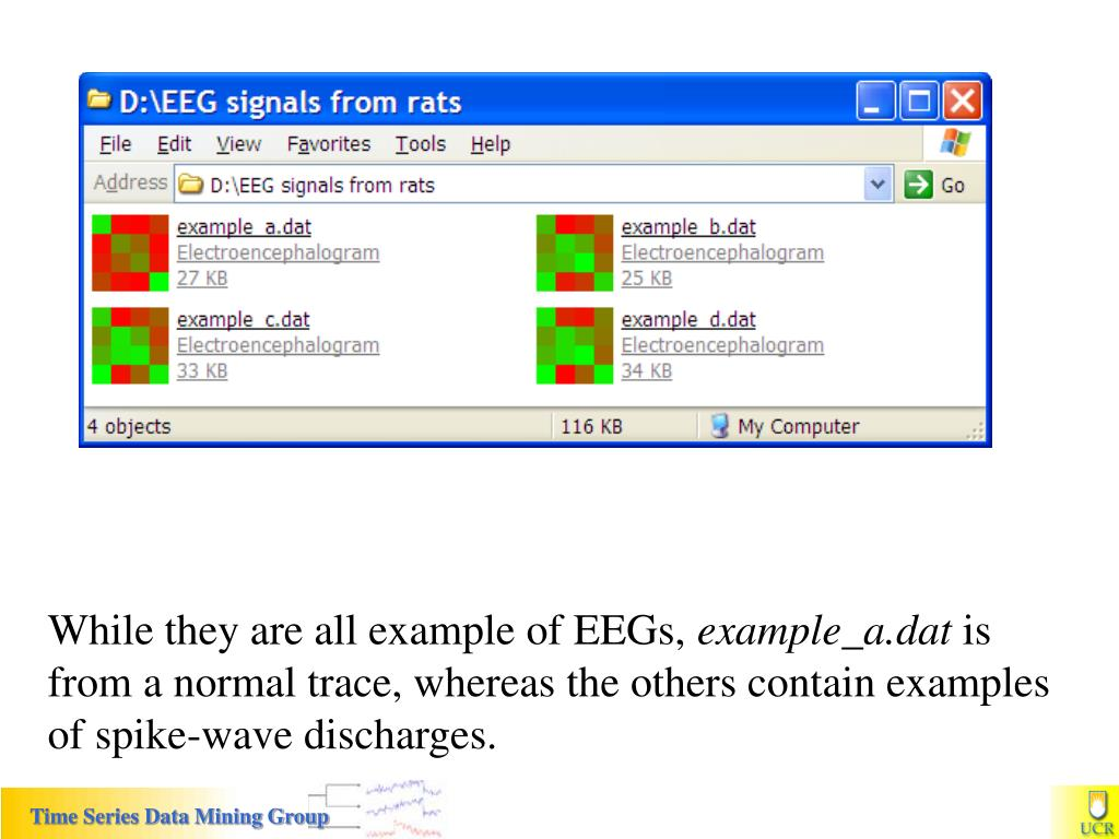 While they are all example of EEGs,