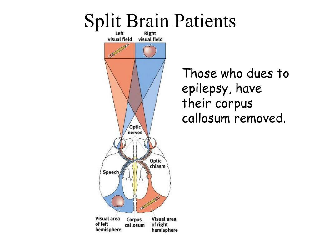 Split Brain Patients