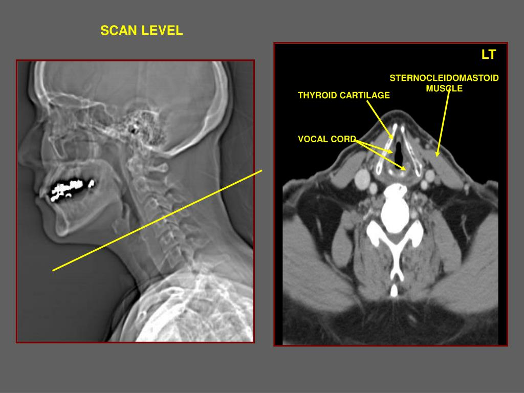 Ppt Radiology Powerpoint Presentation Free Download Id 375773