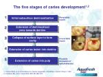 the five stages of caries development 1 2