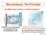microdialysis the principle