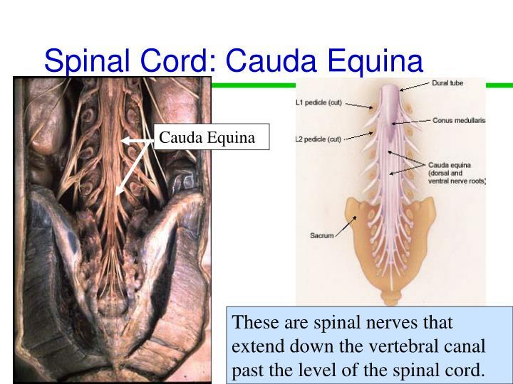 Spinal Cord: Cauda Equina