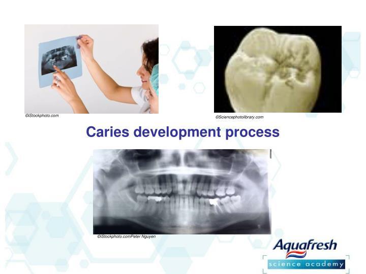 Caries development process