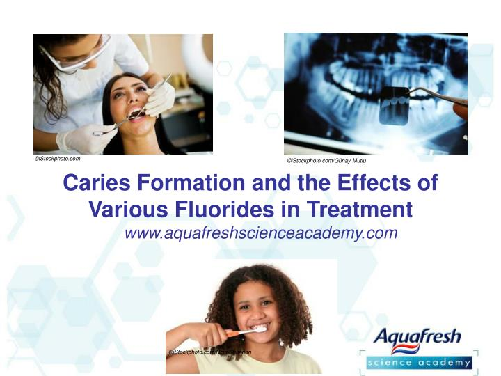 Caries formation and the effects of various fluorides in treatment
