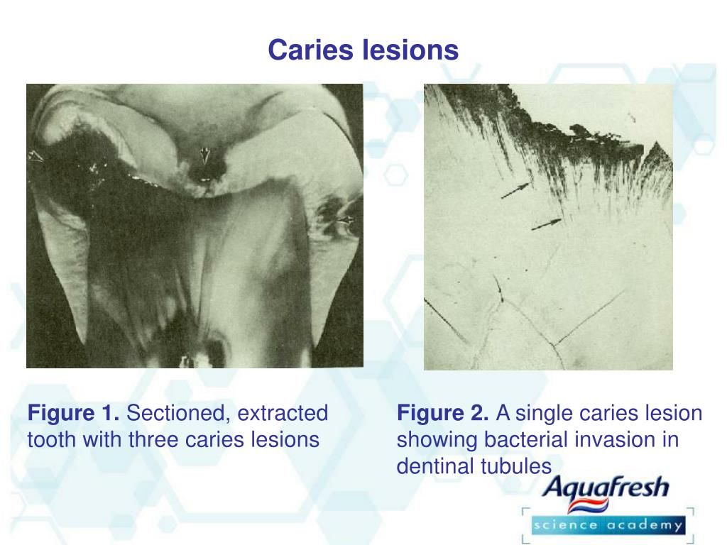 Caries lesions