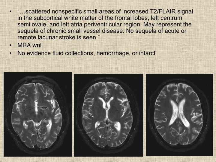 """""""…scattered nonspecific small areas of increased T2/FLAIR signal in the subcortical white matter of the frontal lobes, left centrum semi ovale, and left atria periventricular region. May represent the sequela of chronic small vessel disease. No sequela of acute or remote lacunar stroke is seen."""""""