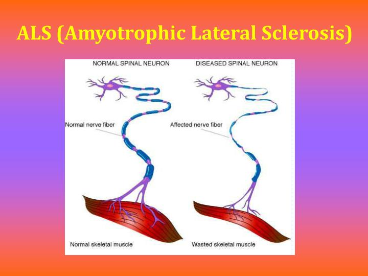 amyotrophic lateral sclerosis als Als (amyotrophic lateral sclerosis) is a degenerative disorder affecting upper motor neurons in the brain and lower motor neurons in the brainstem and spinal cord symptoms include progressive weakness, atrophy, fasciculation, dysphagia, and eventual paralysis of respiratory function.