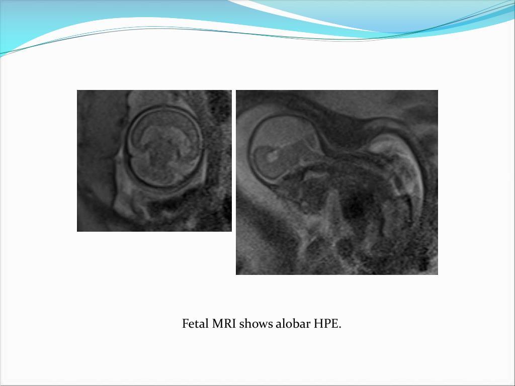 Fetal MRI shows alobar HPE.