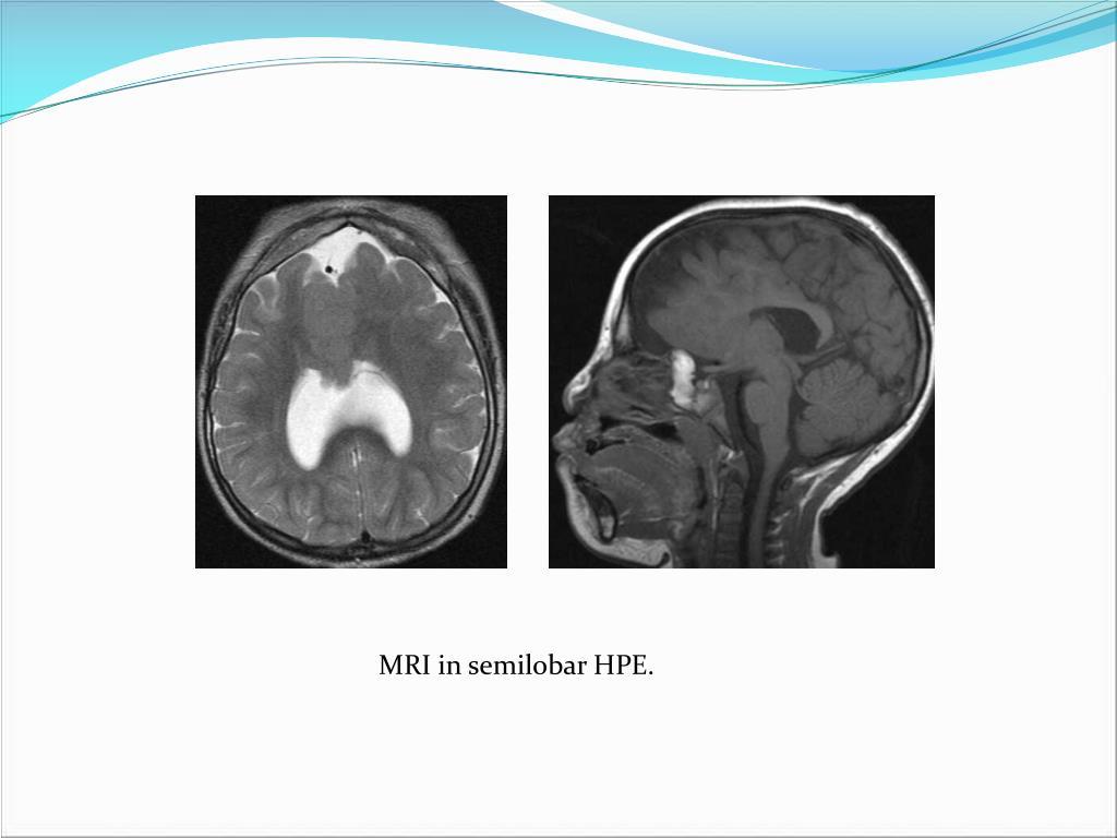 MRI in semilobar HPE.