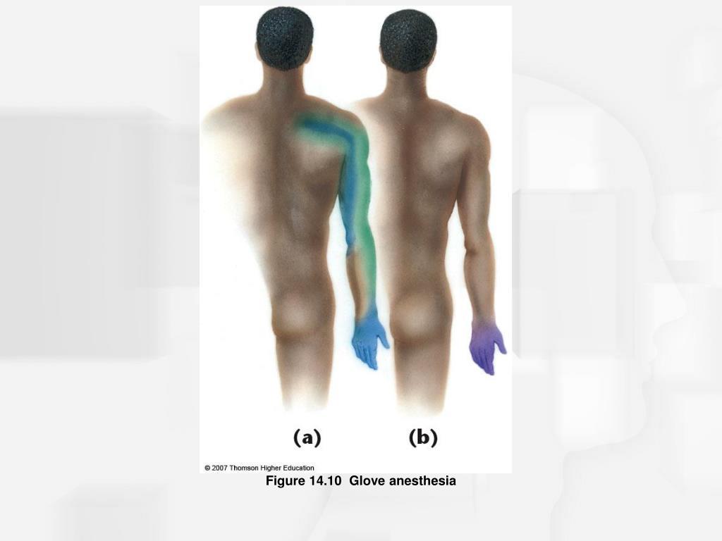 Figure 14.10  Glove anesthesia