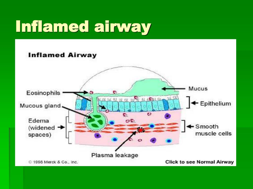Inflamed airway