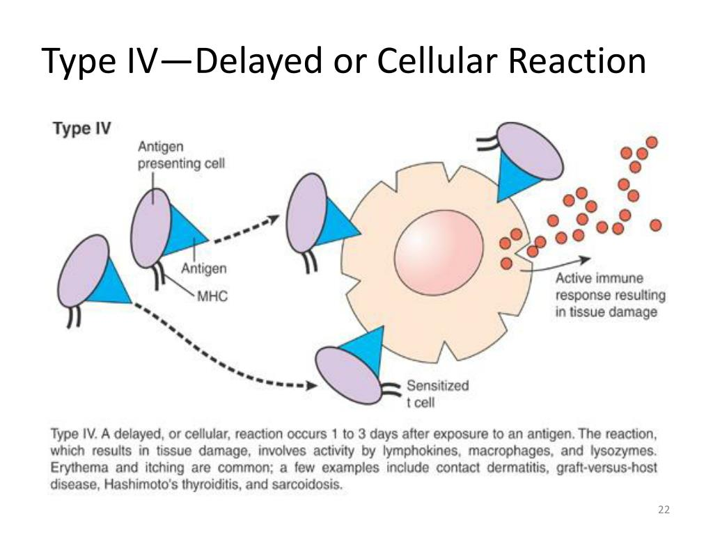 Type IV—Delayed or Cellular Reaction