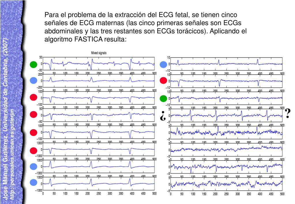 Para el problema de la extracción del ECG fetal, se tienen cinco señales de ECG maternas (las cinco primeras señales son ECGs abdominales y las tres restantes son ECGs torácicos). Aplicando el algoritmo FASTICA resulta: