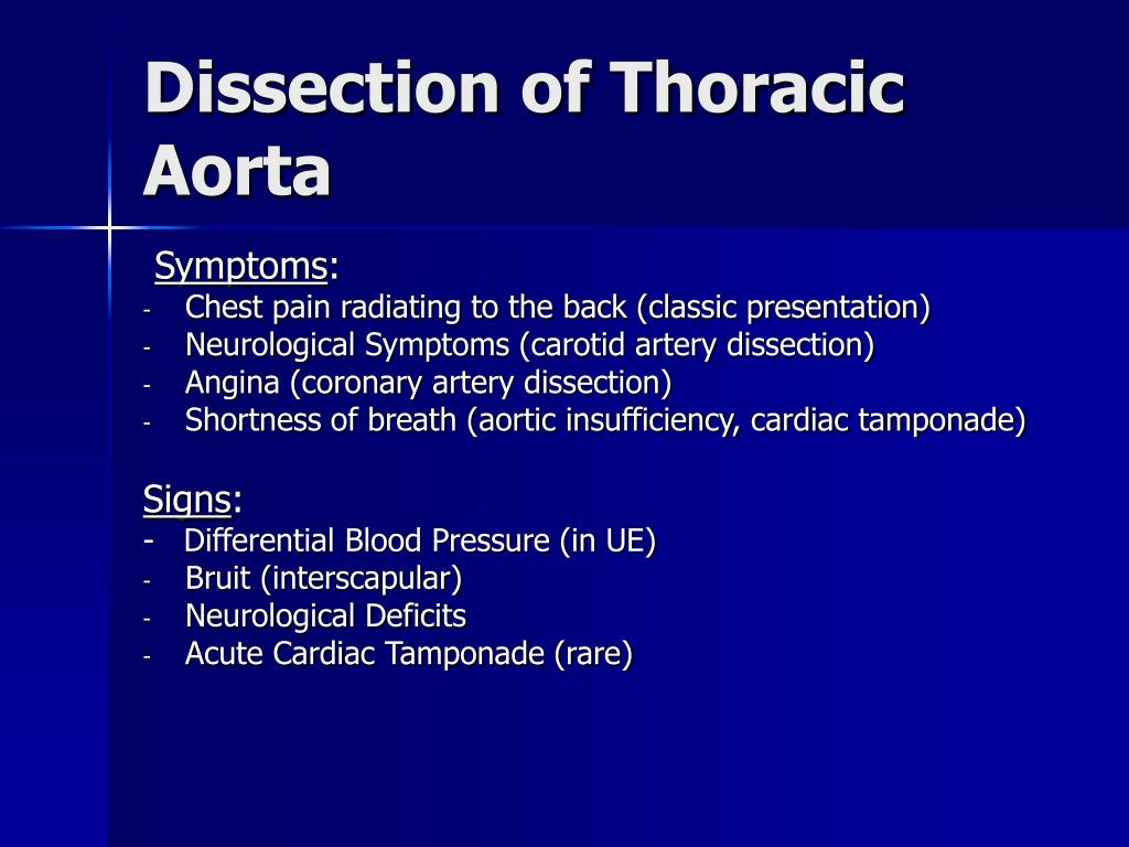 Dissection of Thoracic Aorta