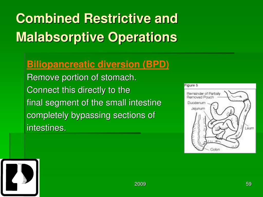 Combined Restrictive and Malabsorptive Operations