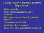 cardiac mass vs normal structures right atrium