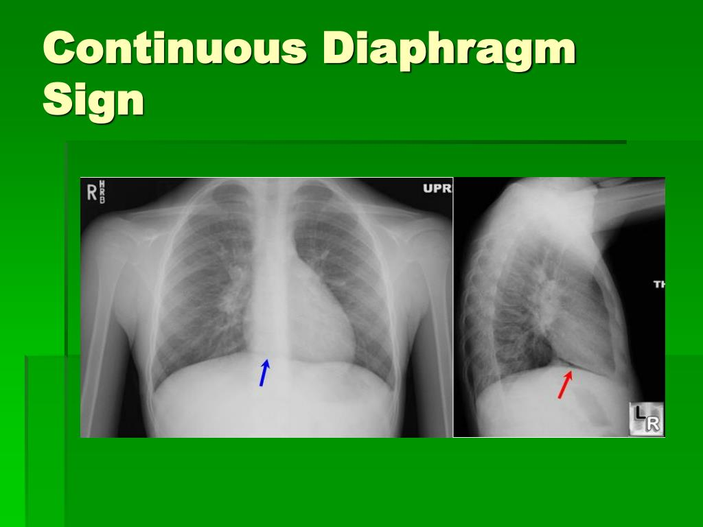 Continuous Diaphragm Sign