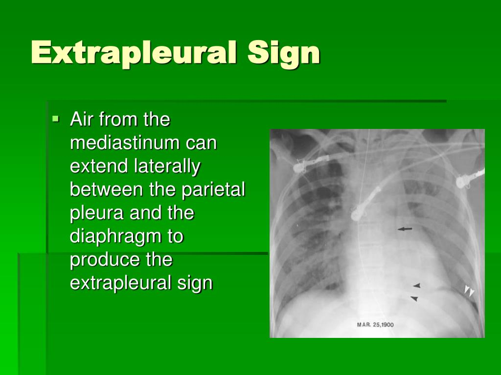 Extrapleural Sign