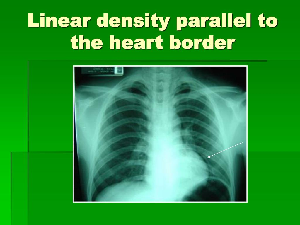 Linear density parallel to the heart border