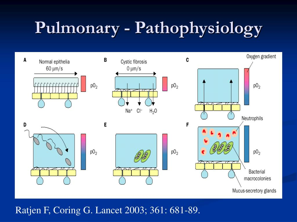 Pulmonary - Pathophysiology