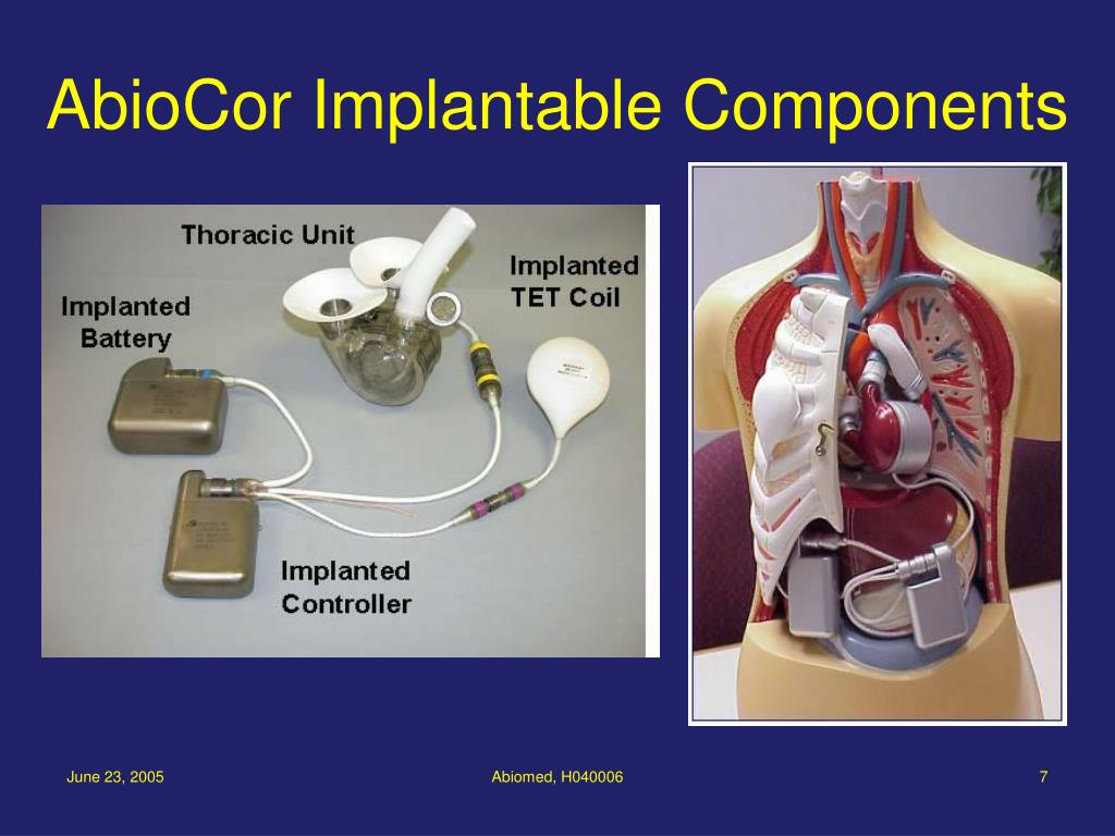 AbioCor Implantable Components