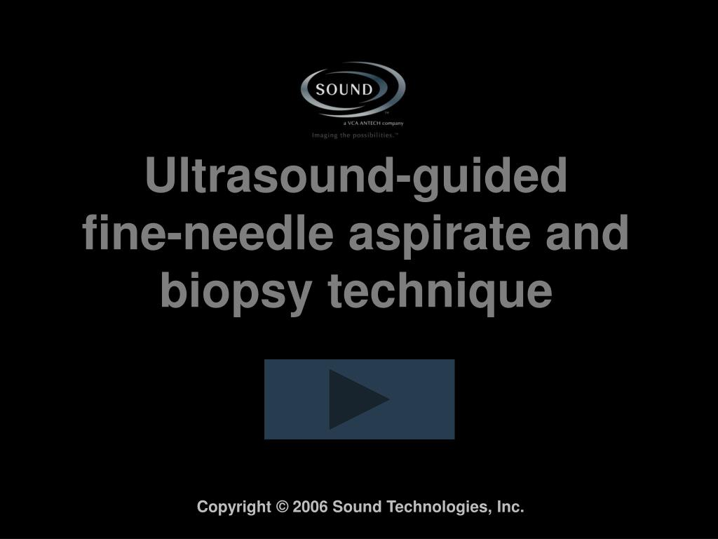 ultrasound guided fine needle aspirate and biopsy technique l.