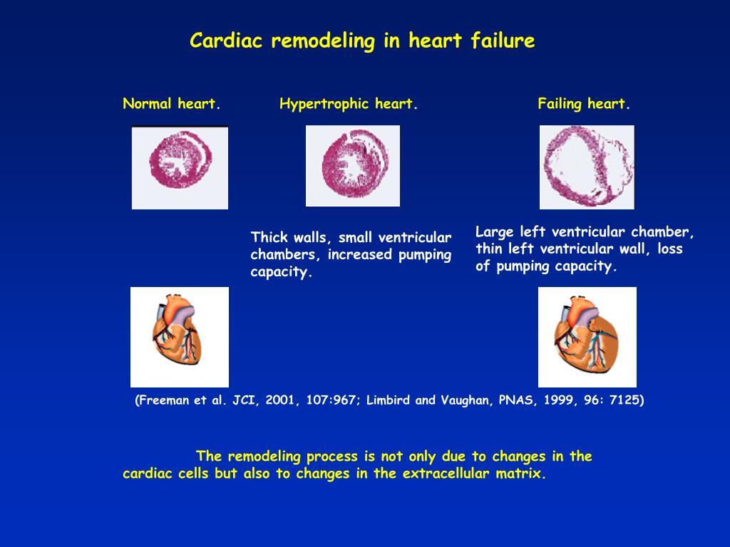 Cardiac remodeling in heart failure