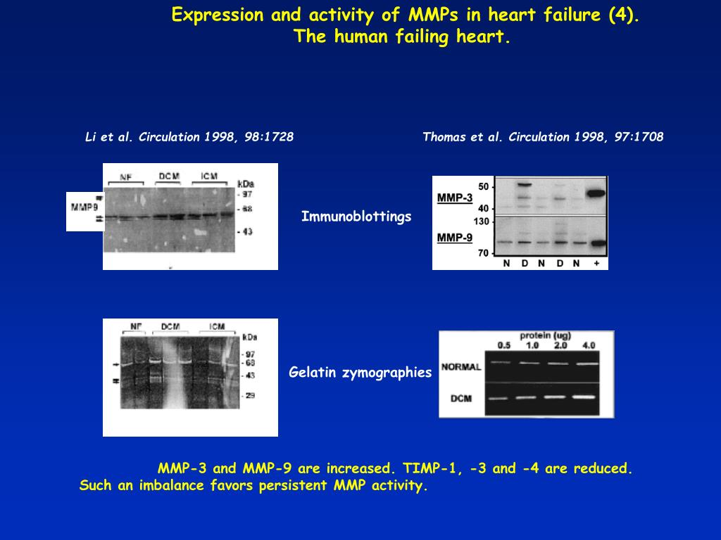 Expression and activity of MMPs in heart failure (4).