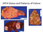 dpc4 status and patterns of failure26