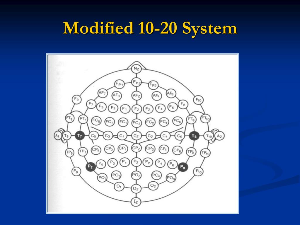 Modified 10-20 System