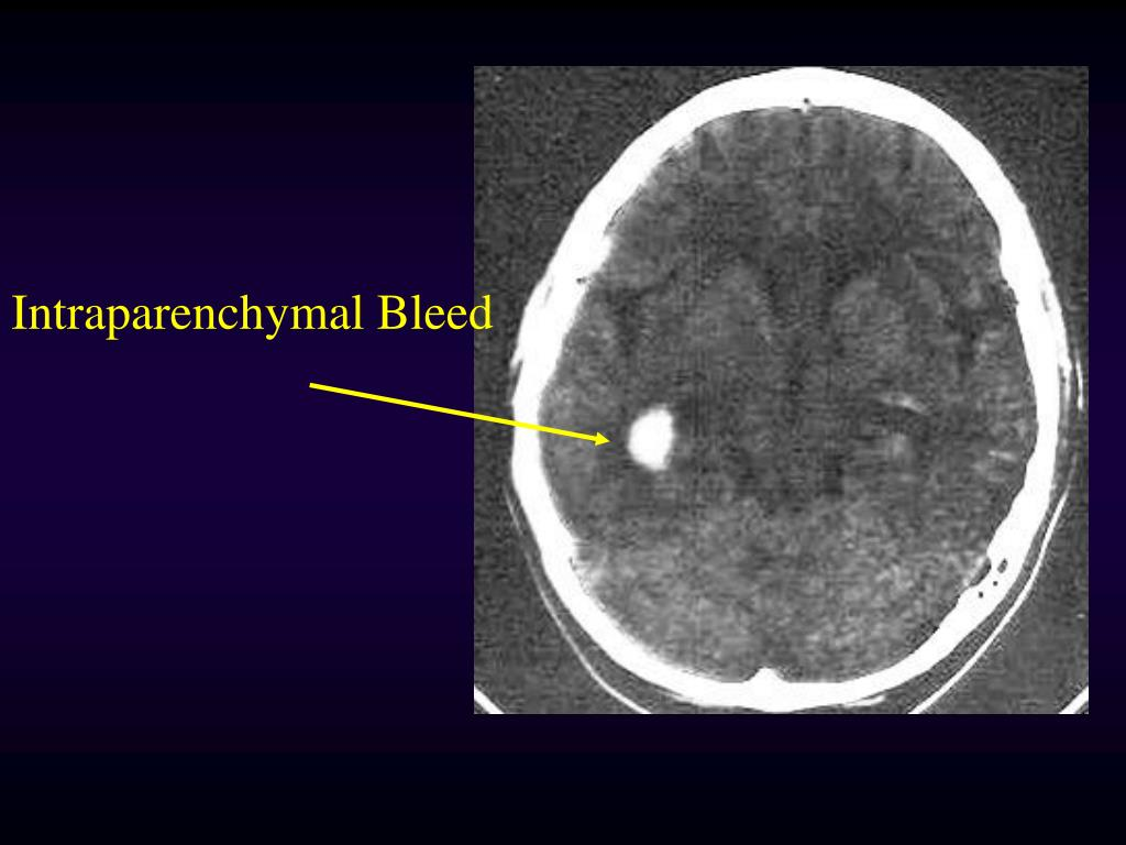 Intraparenchymal Bleed