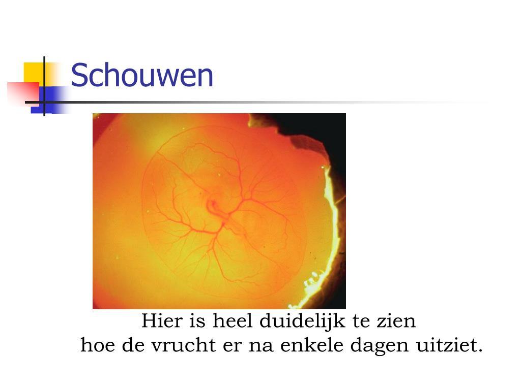 Schouwen