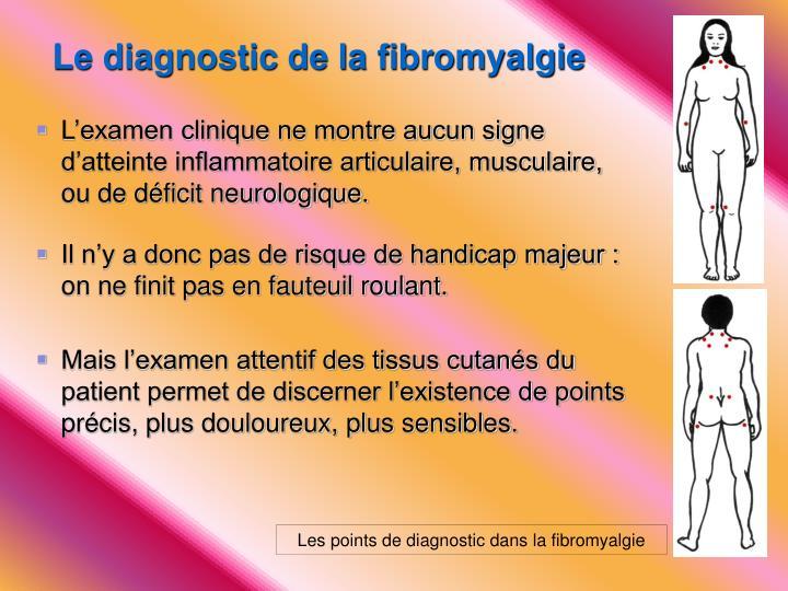 Le diagnostic de la fibromyalgie