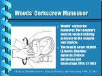woods corkscrew maneuver