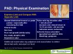 pad physical examination