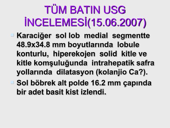 TÜM BATIN USG İNCELEMESİ(15.06.2007)