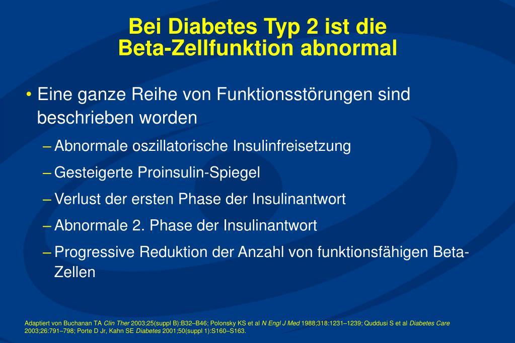 Bei Diabetes Typ 2 ist die
