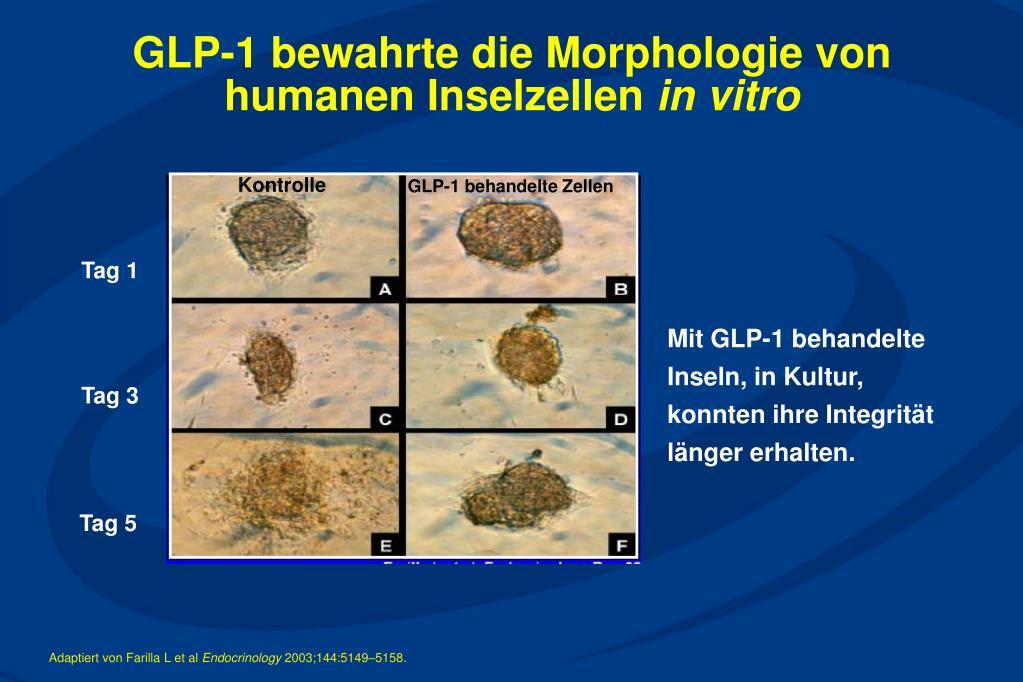 GLP-1 bewahrte die Morphologie von humanen Inselzellen