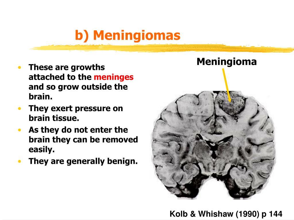 b) Meningiomas