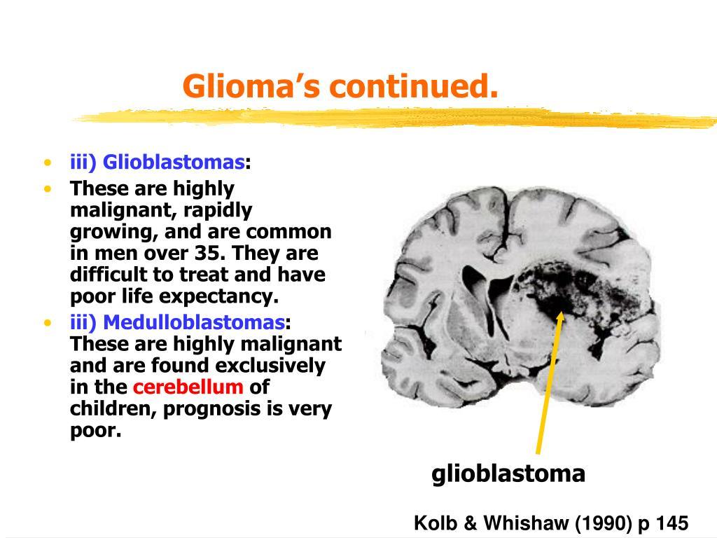 Glioma's continued.