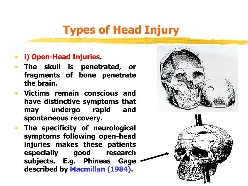 Types of Head Injury