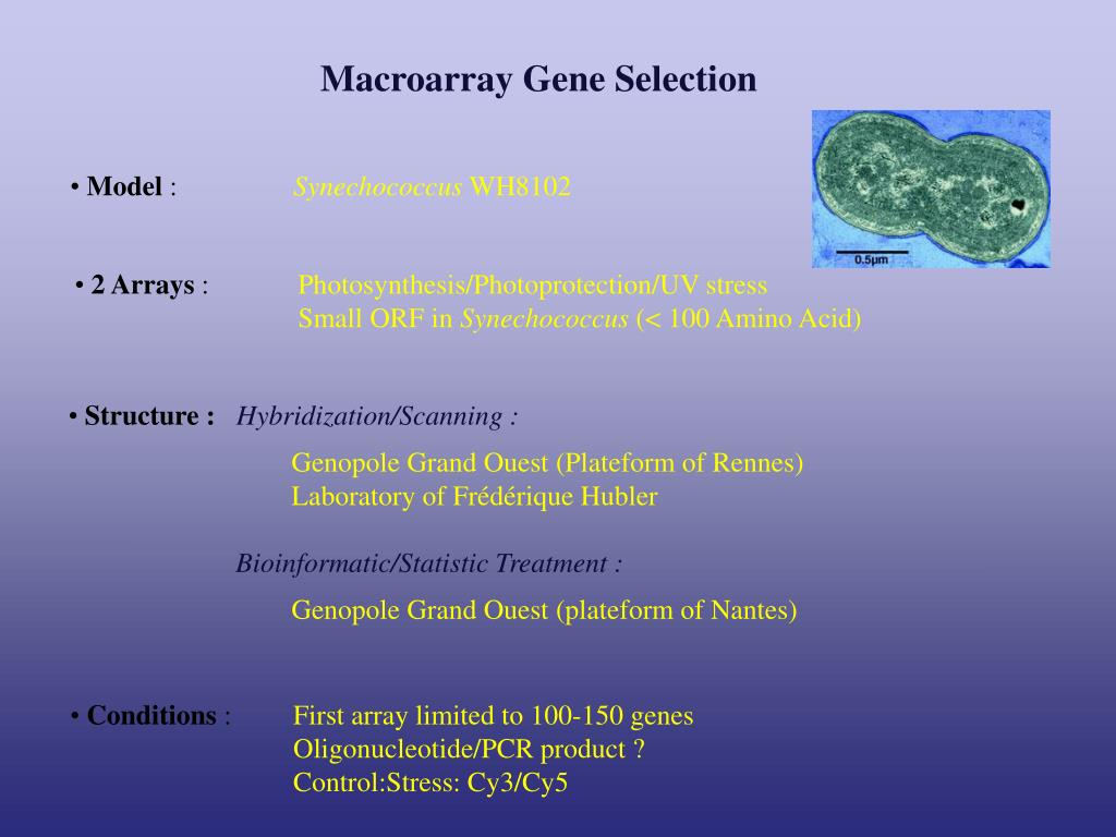 Macroarray Gene Selection