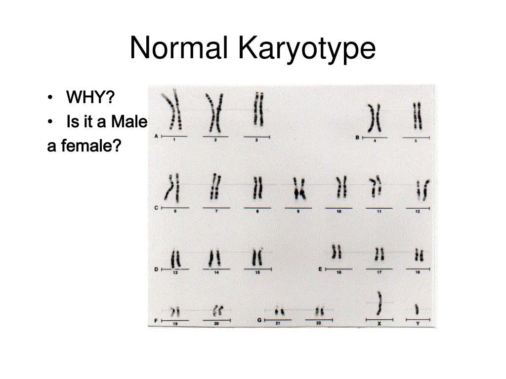 Normal Karyotype
