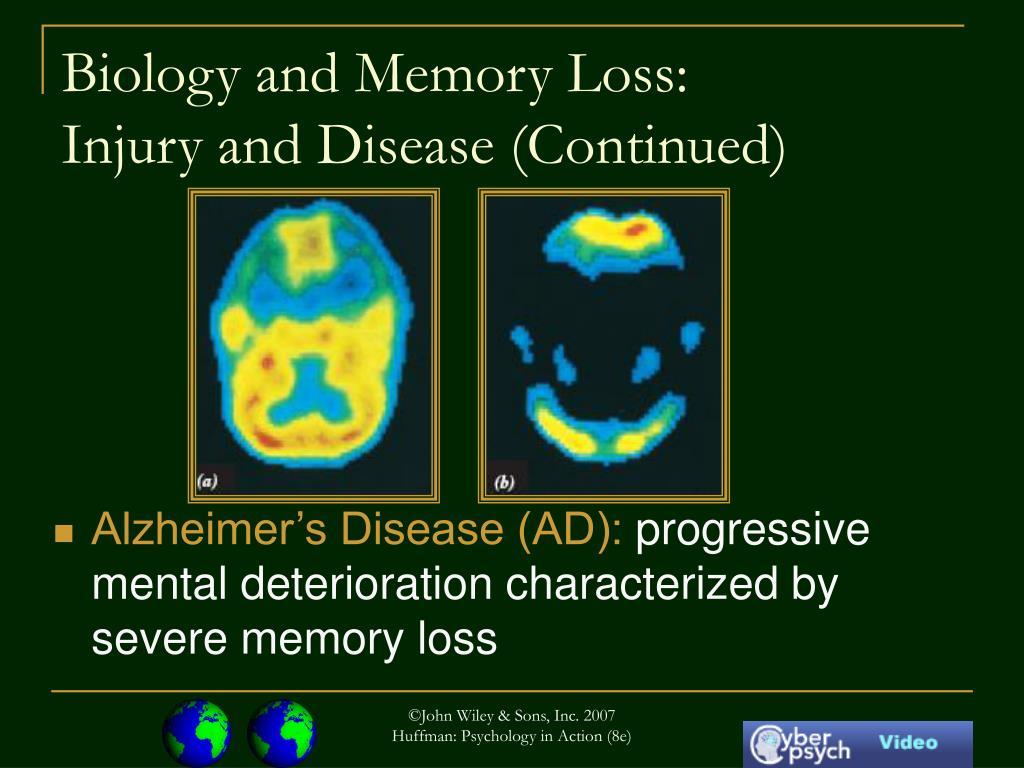 Biology and Memory Loss: