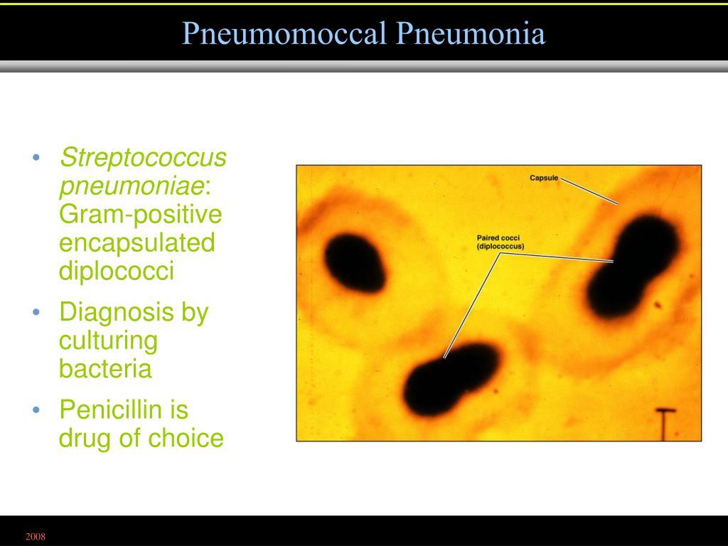 Pneumomoccal Pneumonia